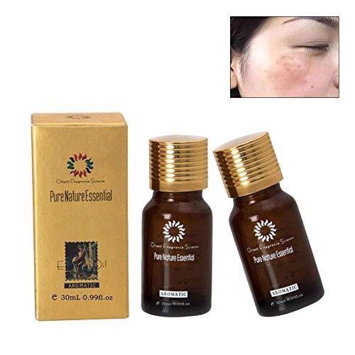 Ultra Brightening Spotless Öl Dark Spots Entfernung Altersflecken Hyper-Pigmentierung für Körper Hals Dark Spot Corrector Verbessert für dunkle Haut (2 Flaschen) -
