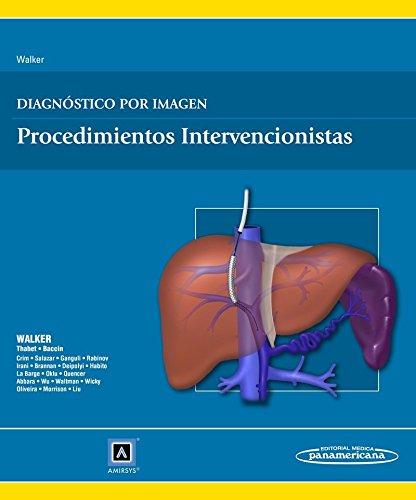 Diagnóstico Por Imagen. Procedimientos Intervencionistas