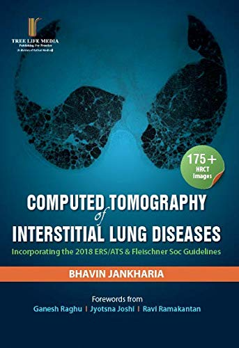 Computed Tomography of Interstitial Lung Diseases