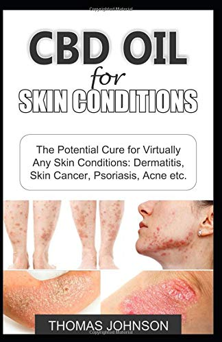 Psoriasis Relief (CBD OIL FOR SKIN CONDITIONS: The Potential Cure for Virtually Any Skin Conditions: Dermatitis, Skin Cancer, Psoriasis, Acne etc.)