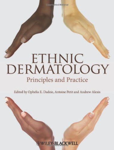 Ethnic Dermatology: Principles and Practice 1st Edition by Dadzie, Ophelia E., Petit, Antoine, Alexis, Andrew F. (2013) Hardcover