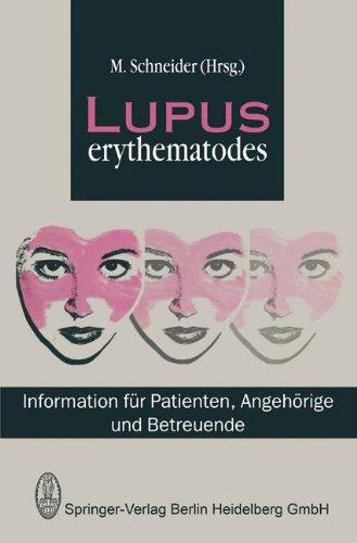 Lupus erythematodes. Information für Patienten, Angehörige und Betreuende