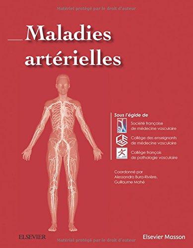 Maladies artrielles