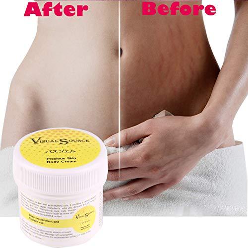 Schwangerschafts-Dehnungsstreifen Creme, Akne-Narbe Kennzeichnet Fette Narben-Striae Gravidarum-Creme, Haut-Körper-Creme durch ROMANTIC BEAR