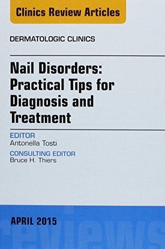 Nail Disorders: Practical Tips for Diagnosis and Treatment, An Issue of Dermatologic Clinics, 1e (The Clinics: Dermatology) by Tosti MD, Antonella (2015) Hardcover
