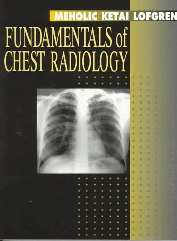 Fundamentals of Chest Radiology (Fundamentals of Radiology) by Andrew Meholic MD (5-Jul-1996) Paperback