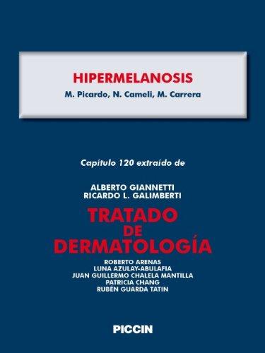 Capítulo 120 extraído de Tratado de Dermatología - HIPERMELANOSIS por A.Giannetti