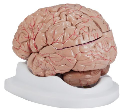 Anatomical Chart Company Budget Brain With Arteries Model