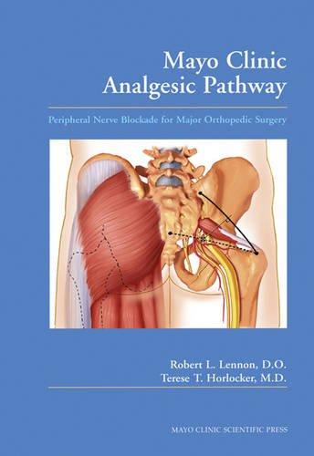 mayo-clinic-analgesic-pathway-peripheral-nerve-blockade-for-major-orthopedic-surgery-volume-1