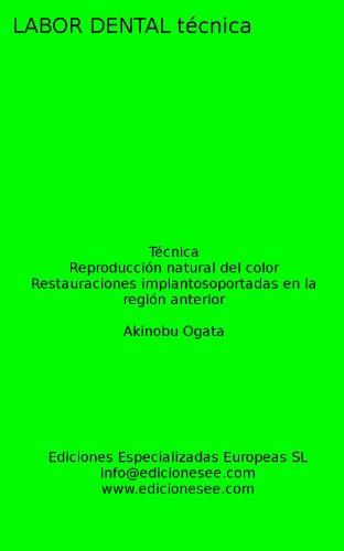 Reproducción natural del color: Restauraciones implantosoportadas en la región anterior (Labor Dental Técnica)