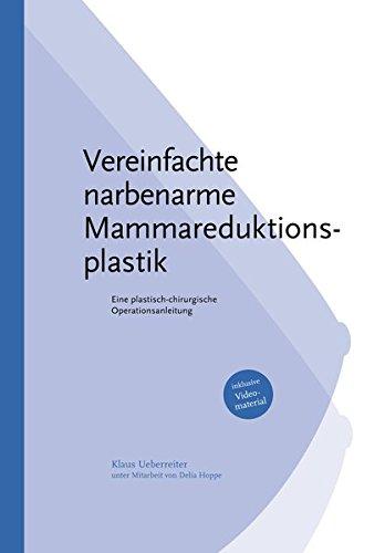 Vereinfachte Narbenarme Mammareduktionsplastik: Eine plastisch-chirurgische Operationsanleitung