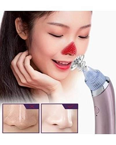 DBORIL Blackhead Remover Pore Vacuum-Electric Microdermabrasion Machine,Black Head Cleaning Tool,Pimple Sucker & Facial Cleanser Device for Pores Acne Nose Skin, pimple removal tool(Color May Vary)