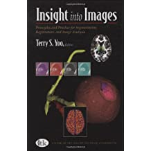 Insight into Images: Principles and Practice for Segmentation, Registration, and Image Analysis