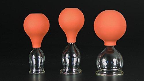 Lauschaer Glas 3er Schröpfglas-Set mit Ball 25-35-45mm Zum professionellen, medizinischen, feuerlosen Schröpfen mundgeblasen, handgeformt, Schröpfglas, Schröpfgläser, Original
