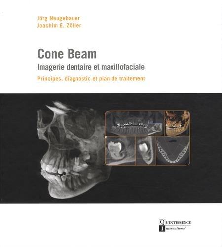 Cone Beam : imagerie dentaire et maxillofaciale : Principes, diagnostic et plan de traitement