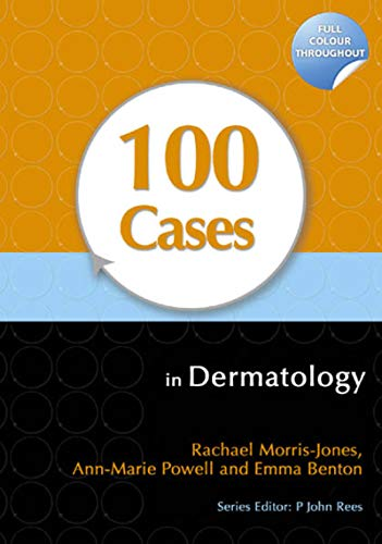 100 Cases in Dermatology (English Edition)