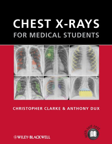 Chest X-rays for Medical Students (English Edition)