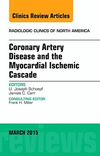 Coronary Artery Disease and the Myocardial Ischemic Cascade, An Issue of Radiologic Clinics of North America, 1e (The Clinics: Radiology) 1st Edition by Schoepf MD, U. Joseph (2015) Hardcover