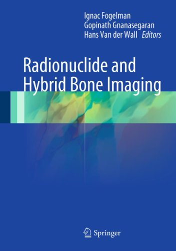Radionuclide and Hybrid Bone Imaging (English Edition)