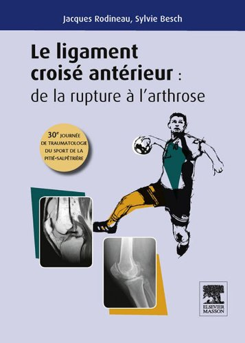 Le ligament croisé antérieur : de la rupture à l'arthrose: 30e journée de traumatologie du sport de la Pitié