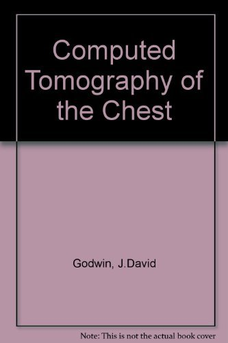 Computed Tomography of the Chest by J.David Godwin (1984-06-01)