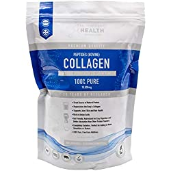 Hydrolysed Collagen Powder (Bovine) 450g - High Protein Grass Fed Unflavoured Peptides Supplement | Best Collagen for Skin, Joints, Digestion & Gut Health | Gluten Free, Paleo & Keto Friendly