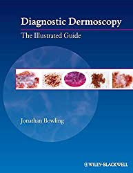 Diagnostic Dermoscopy: The Illustrated Guide