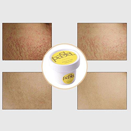 Crema de eliminación de cicatrices, la mejor fórmula para eliminar las cicatrices antiguas y nuevas, para reparar el cuerpo de la piel de la maternidad y el pospartú (vitamina E y Centella Asiatica)