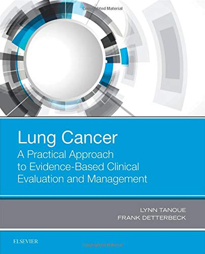 Lung Cancer: A Practical Approach to Evidence-Based Clinical Evaluation and Management, 1e por Lynn T. Tanoue MD