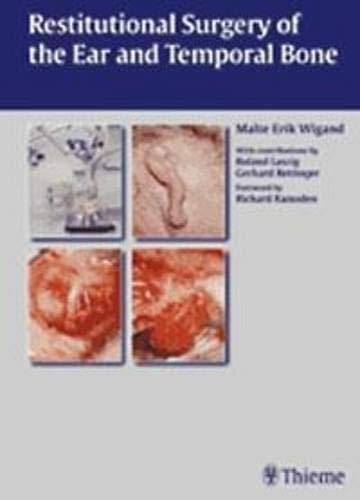 Restitutional Surgery of the Ear and Temporal Bone