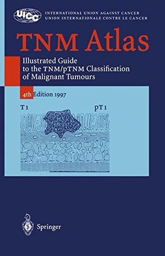 TNM Atlas: Illustrated Guide to the TNM/pTNM-Classification of Malignant Tumours