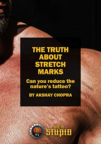 The truth about stretch marks: can you reduce the nature's tattoo? (we r stupid book 8) (english edition)