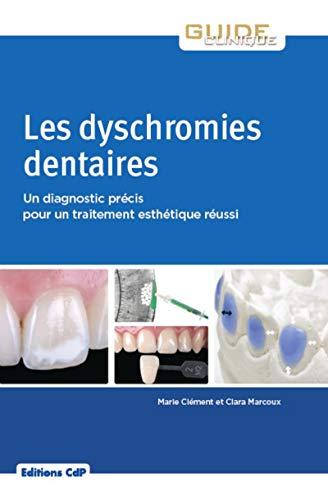 Les dyschromies dentaires: Un diagnostic précis pour un traitement esthétique réussi par Clara Marcoux, Marie Clément