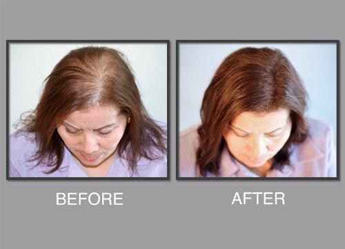 revolution-fibre-capillaire-naturel-en-proteine-de-keratine-bio-systeme-depaississement-de-cheveux-i