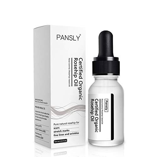 Mimiga Wesen Hagebuttenöl Gesicht Whitening Feuchtigkeitscreme Anti-Aging-Akne-Behandlung Entfernen Sie Dehnungsstreifen Hautpflege