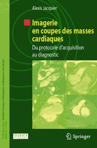 Imagerie en coupes des masses cardiaques: Du protocole d'acquisition au diagnostic (Collection de la Société française d'imagerie cardiaque et vasculaire)
