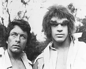 BILL BIXBY AS DR. DAVID BRUCE BANNER, LOU FERRIGNO AS THE