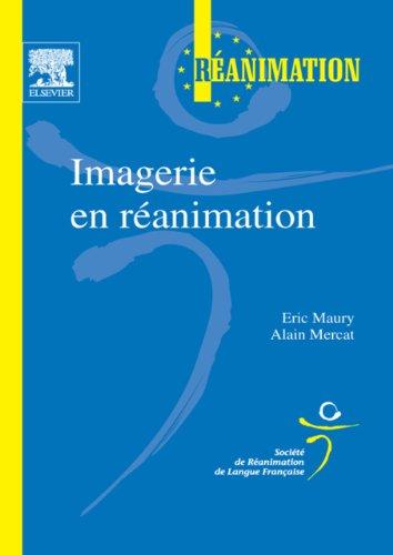 Imagerie en ranimation