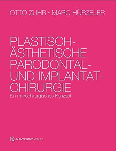 Plastisch-ästhetische Parodontal- und Implantatchirurgie: Ein mikrochirurgisches Konzept by Otto Zuhr (2011-11-28)
