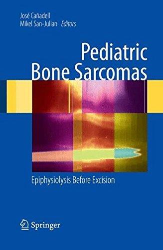 Pediatric Bone Sarcomas: Epiphysiolysis before excision: Epiphysiolysis Instead of Excision (2009-05-28)