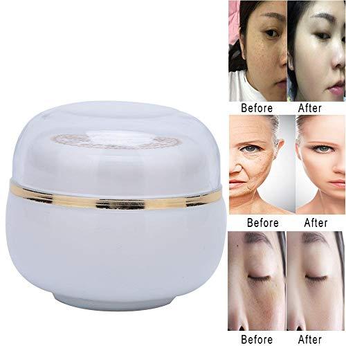 Hautaufhellungscreme, 30 g Sommersprossencreme Anti Falten Whitening Feuchtigkeitscreme, Sommersprossen Entfernungscreme für dunkle Flecken Hautpigmentierung Hautpflegeentfernung