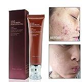 Akne-Narben-Entfernung-Creme, ROMANTIC BEAR Narben-Behandlung für Gesicht und Körper-Narbe Akne-Stellen Brennen Dehnungsstreifen