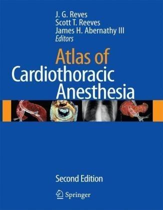 Atlas of Cardiothoracic Anesthesia (Atlas of Anesthesia) (2009-04-13)