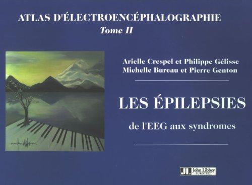 Atlas d'électroencéphalographie : Tome 2, Les épilepsies, de l'EEG aux syndromes