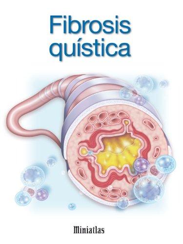 Fibrosis Quística - Miniatlas (Spanish Edition) eBook: Dr. Luis Raúl ...