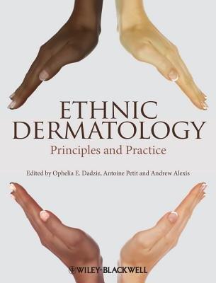 [(Ethnic Dermatology: Principles and Practice)] [Author: Ophelia E. Dadzie] published on (April, 2013)