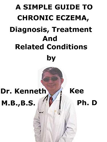 A  Simple  Guide  To  Chronic Eczema,  Diagnosis, Treatment  And  Related Conditions (English Edition)