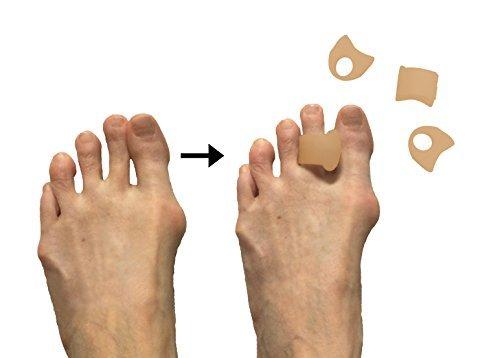 ZenToes Packung mit 4 toe Separatoren und Streuer für Hallux valgus, überlappende Zehen und Drift Schmerz (beige)
