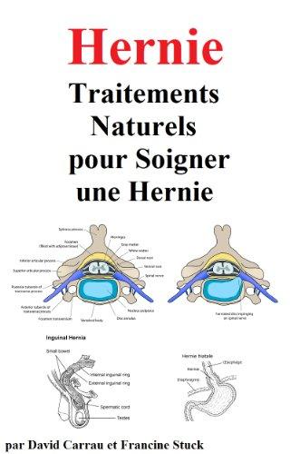 Hernie : Traitements Naturels pour Soigner une Hernie (French Edition)