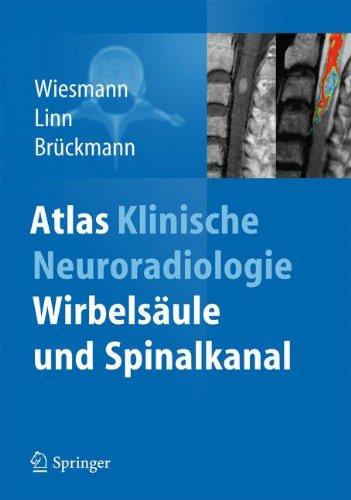 atlas-klinische-neuroradiologie-wirbelsaule-und-spinalkanal